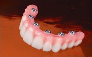 hybrid-dentures